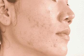 vitamine A zuur helpt tegen acne